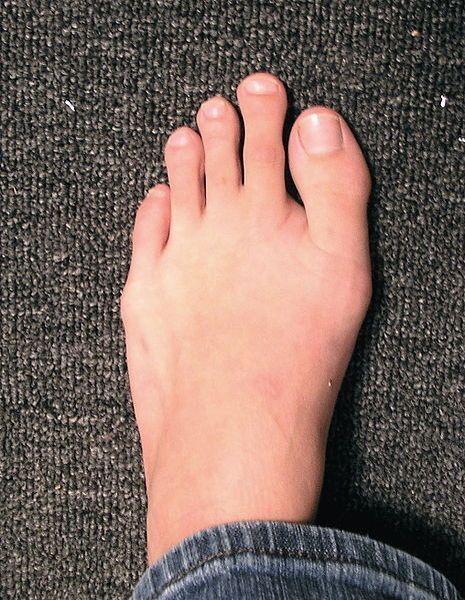 Палец Мортона